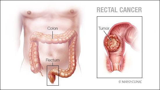 hpv cancer rectal)