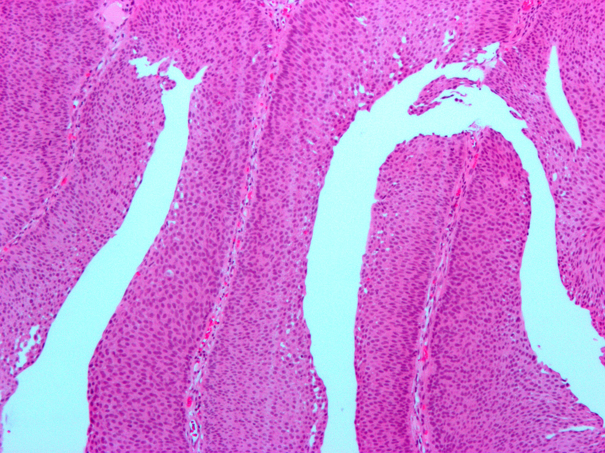 papillary urothelial cell proliferation