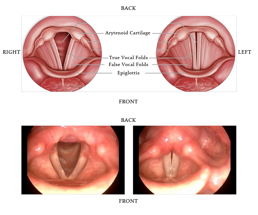 difference between papilloma and polyp)