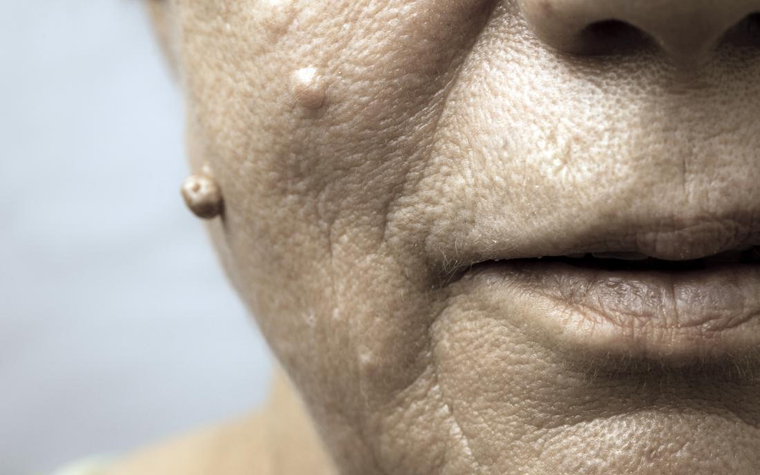 hpv on face cure