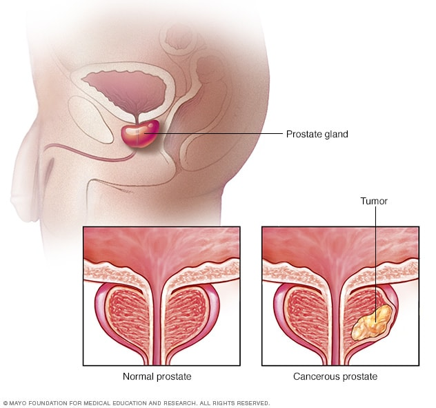 hpv cancer prostate