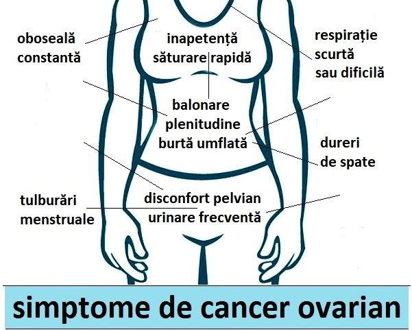 cancerul are simptome)