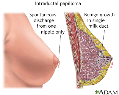intraductal papillomas symptoms