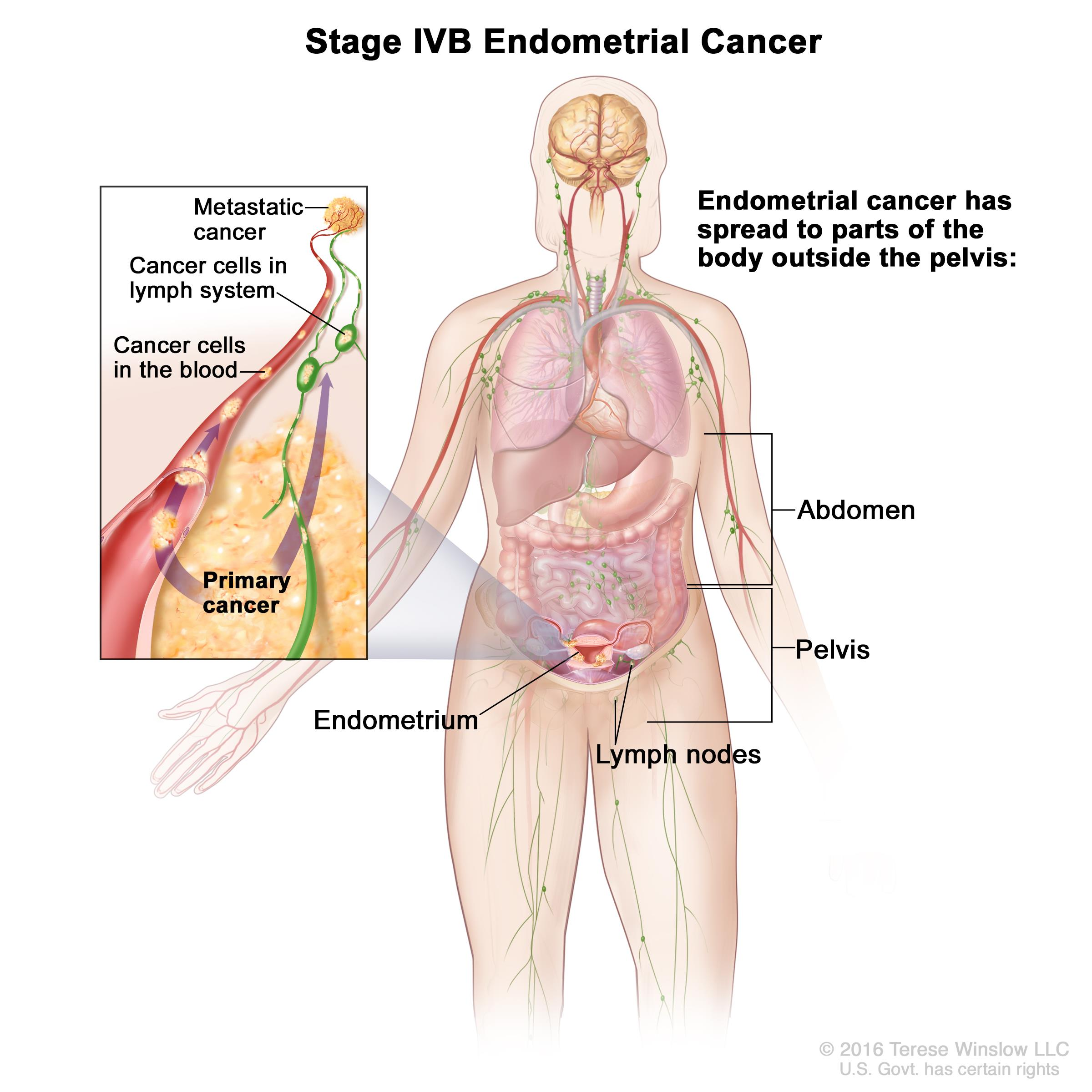 endometrial cancer lower back pain