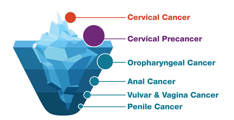 hpv is cancer