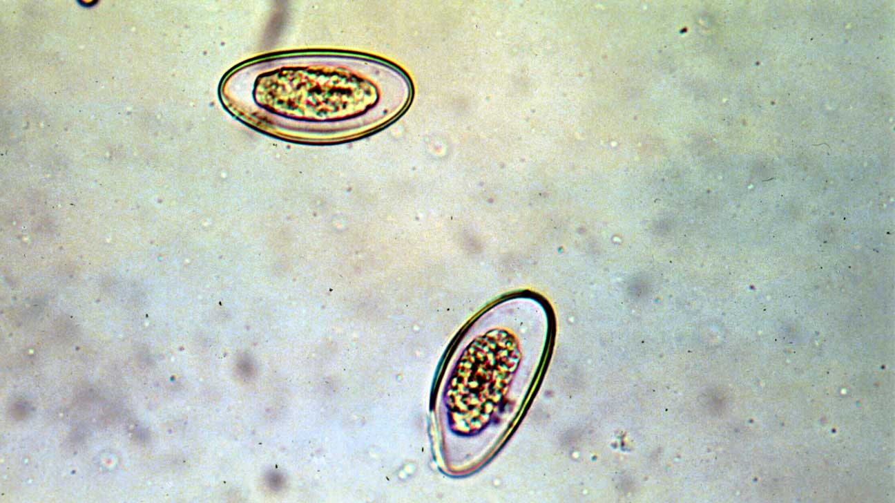 enterobius vermicularis egg in stool)