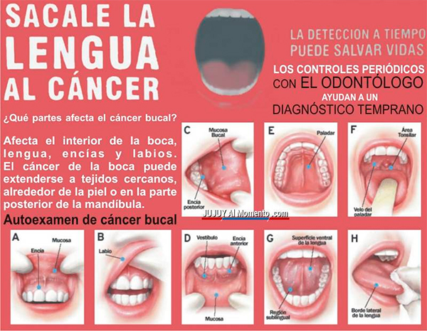 cancer colon homme