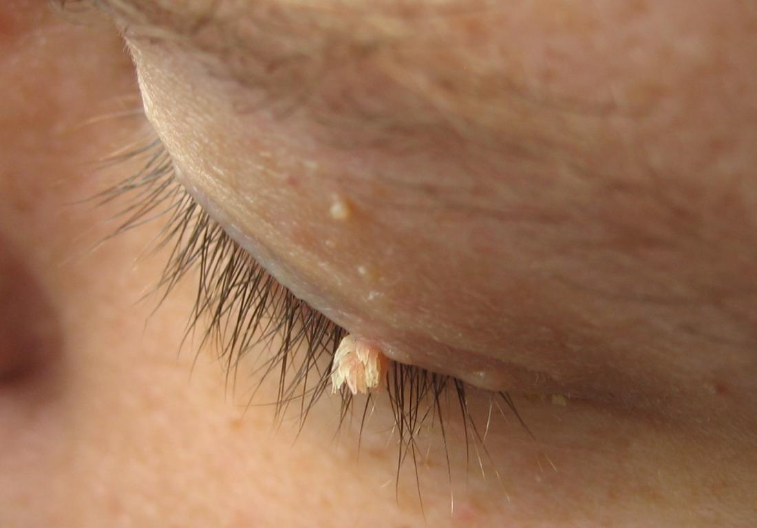 wart on skin removal