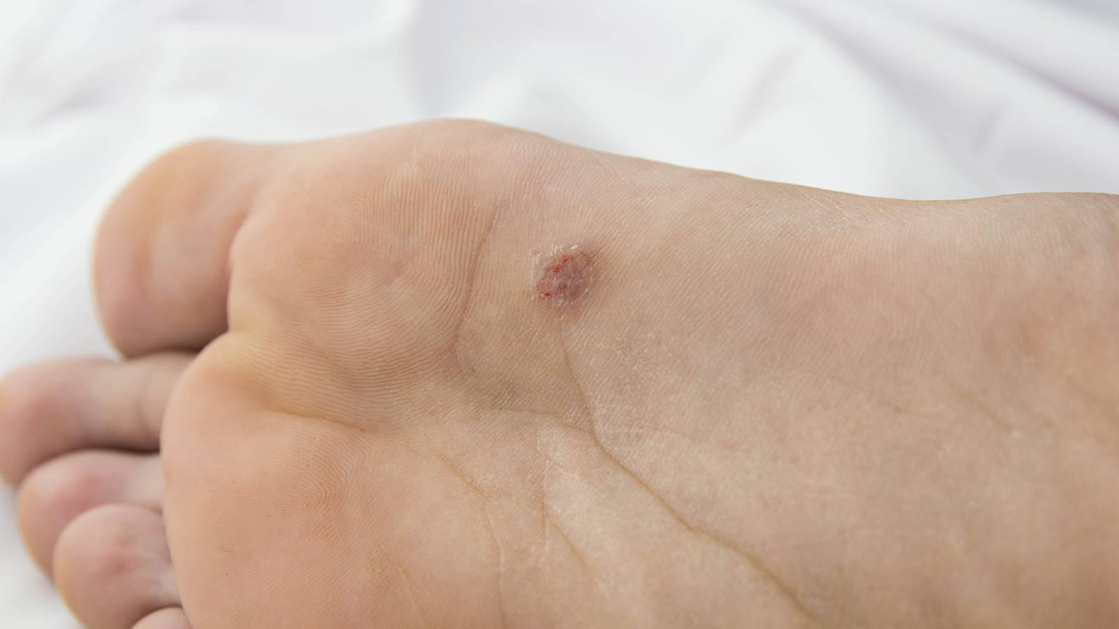 hpv causes warts on feet