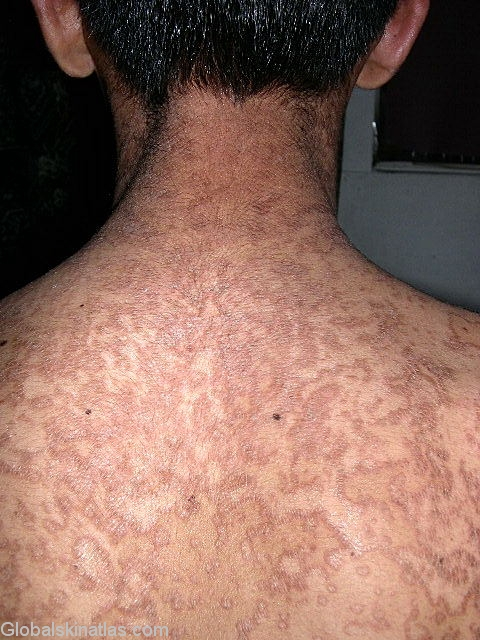 natural treatment for confluent and reticulated papillomatosis)