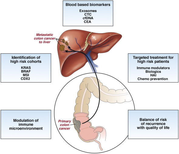 metastatic cancer in liver treatment)