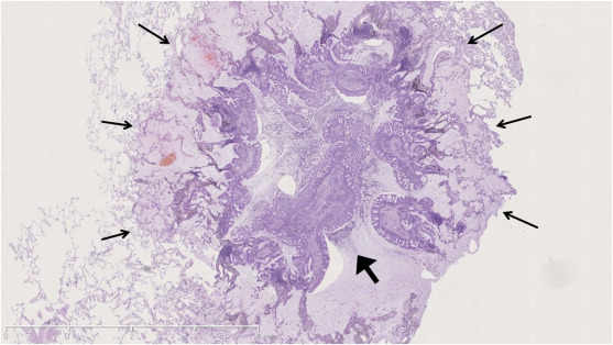 solitary glandular papilloma of the lung