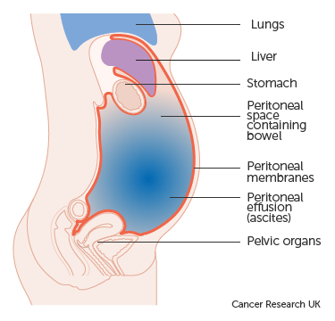 cancer pain abdominal wall