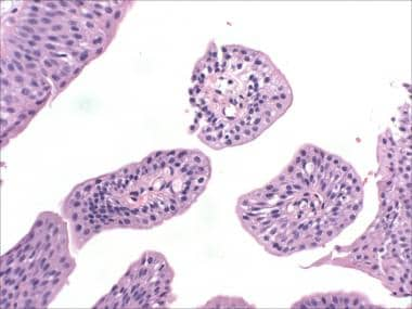 bladder squamous papilloma)