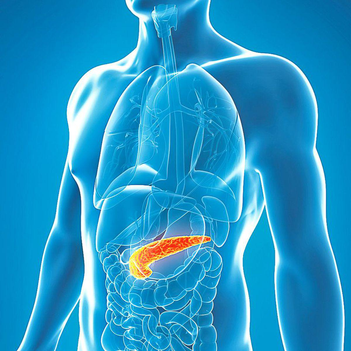 cancerul pancreatic se vindeca