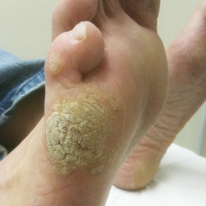 papilloma on foot treatment)