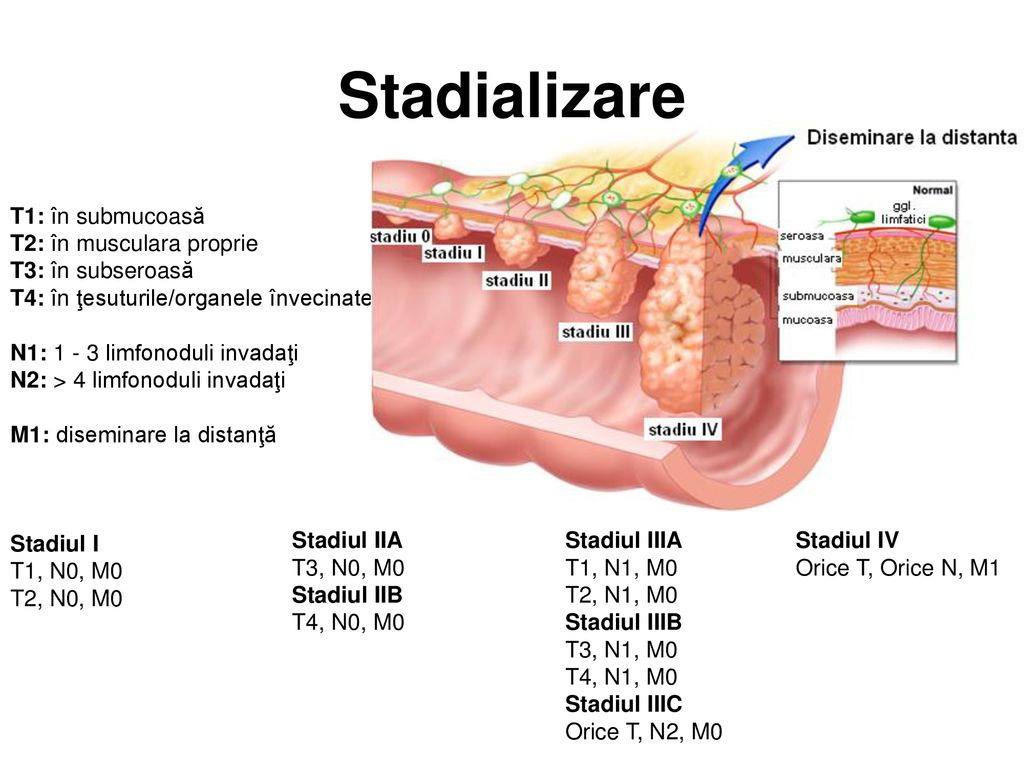 cancer gastric stadiul 4 cancer of abdominal