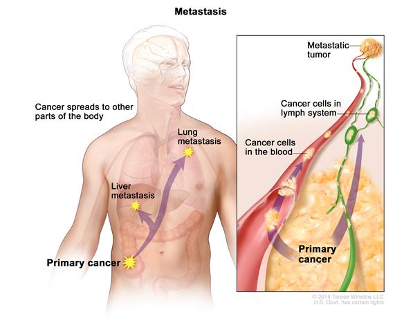 metastatic cancer meaning in bengali)
