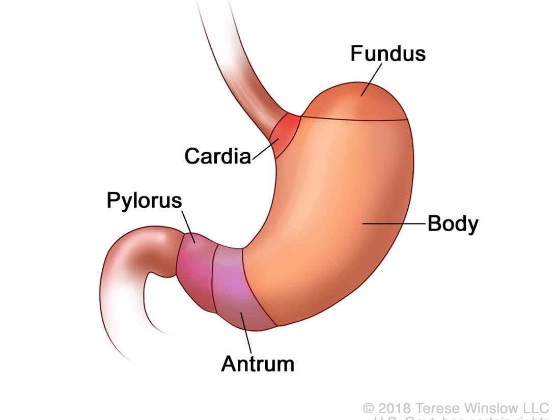 Gastric cancer young adults,
