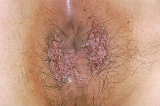 hpv perianal warts)