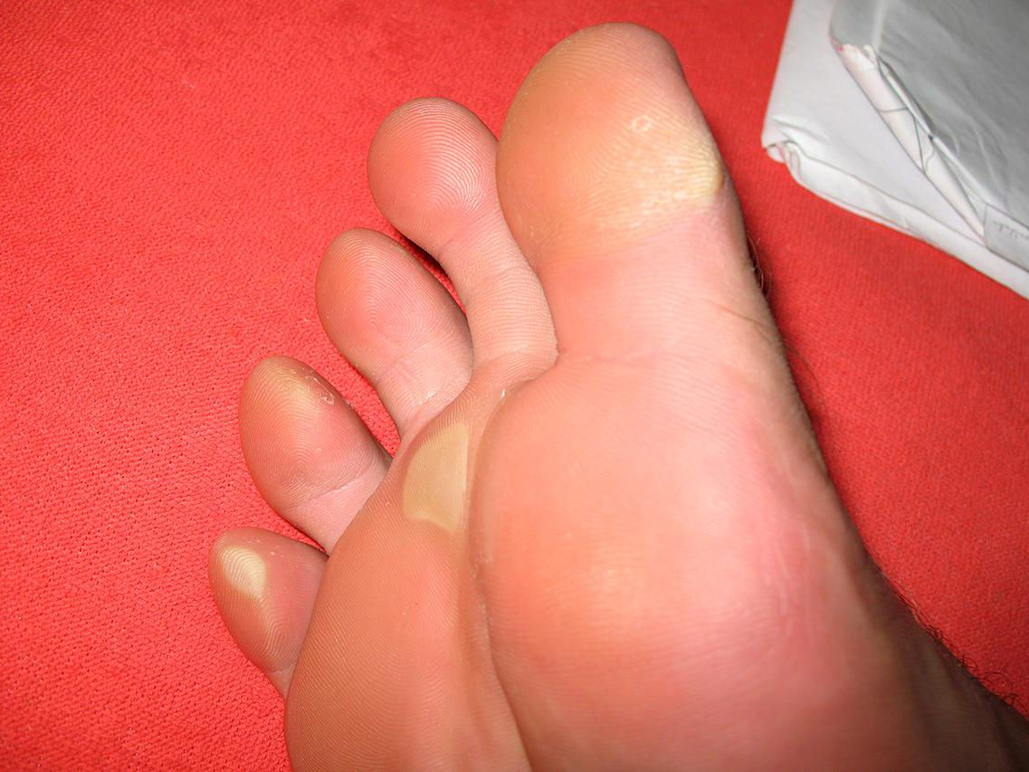 wart on foot keeps bleeding