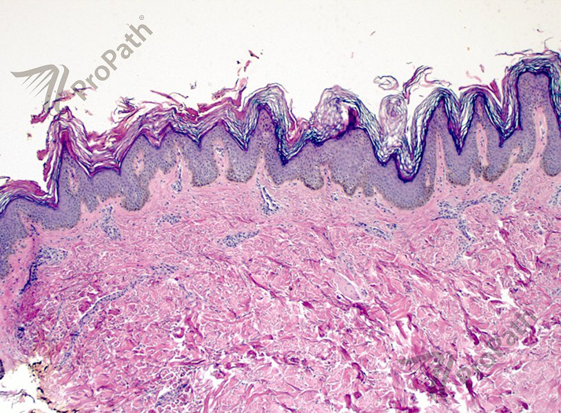 Reticulated papillomatosis pathology - parohiaorsova.ro