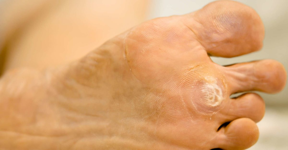 warts on your foot