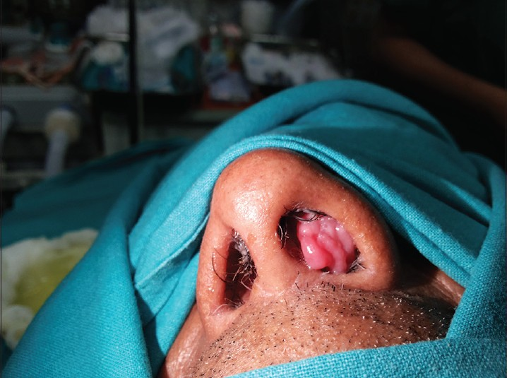 inverted papilloma nasopharynx