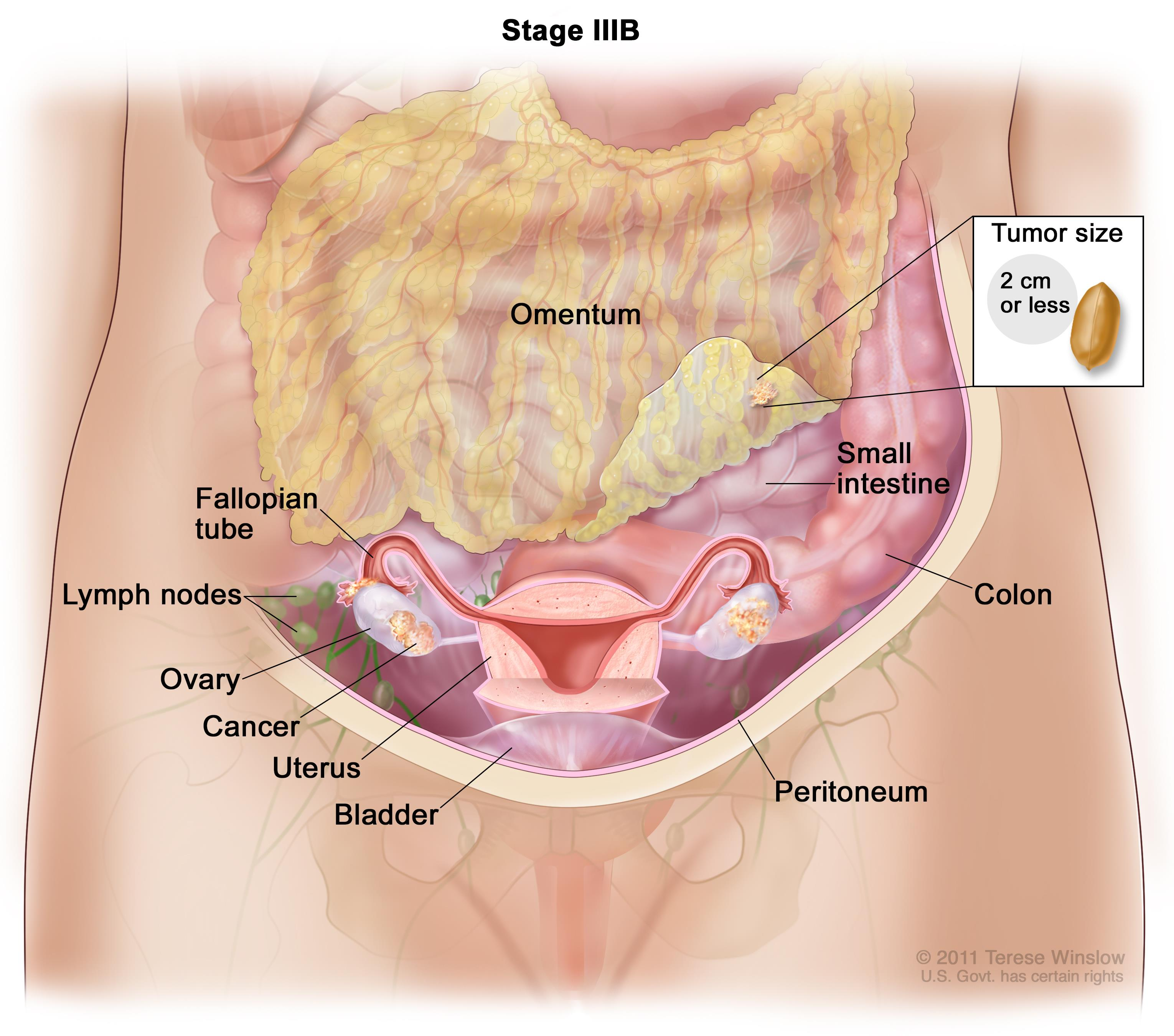 peritoneal cancer recurrence