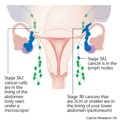 Peritoneal cancer tests
