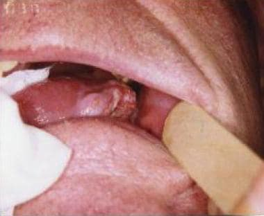 papilloma on tip of tongue