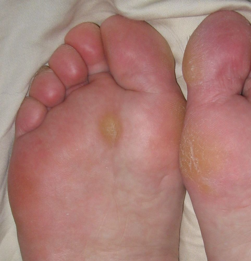 foot wart medical term
