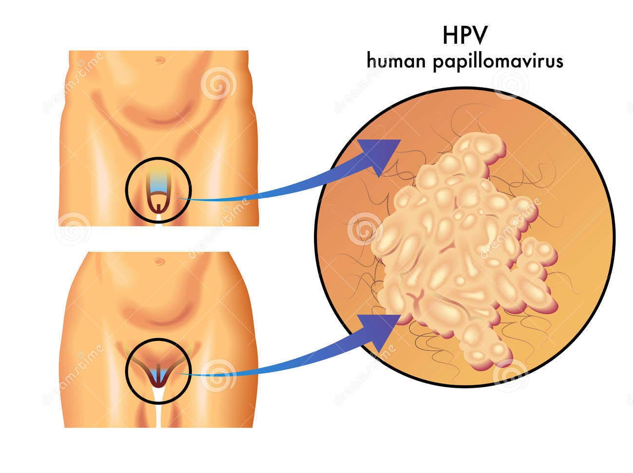 papilloma virus e rapporti hpv causes cancer by