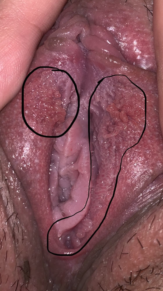 vestibular papillomatosis itchy and painful