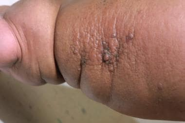 papillomas and lymphedema)