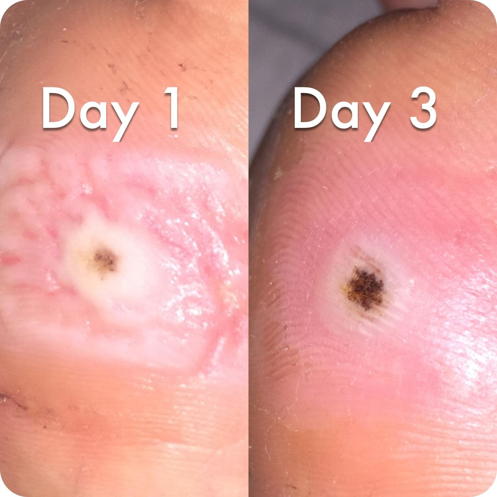 wart on foot pulsing