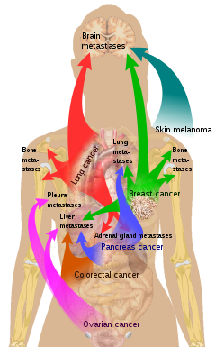 Metastatic cancer and pain.