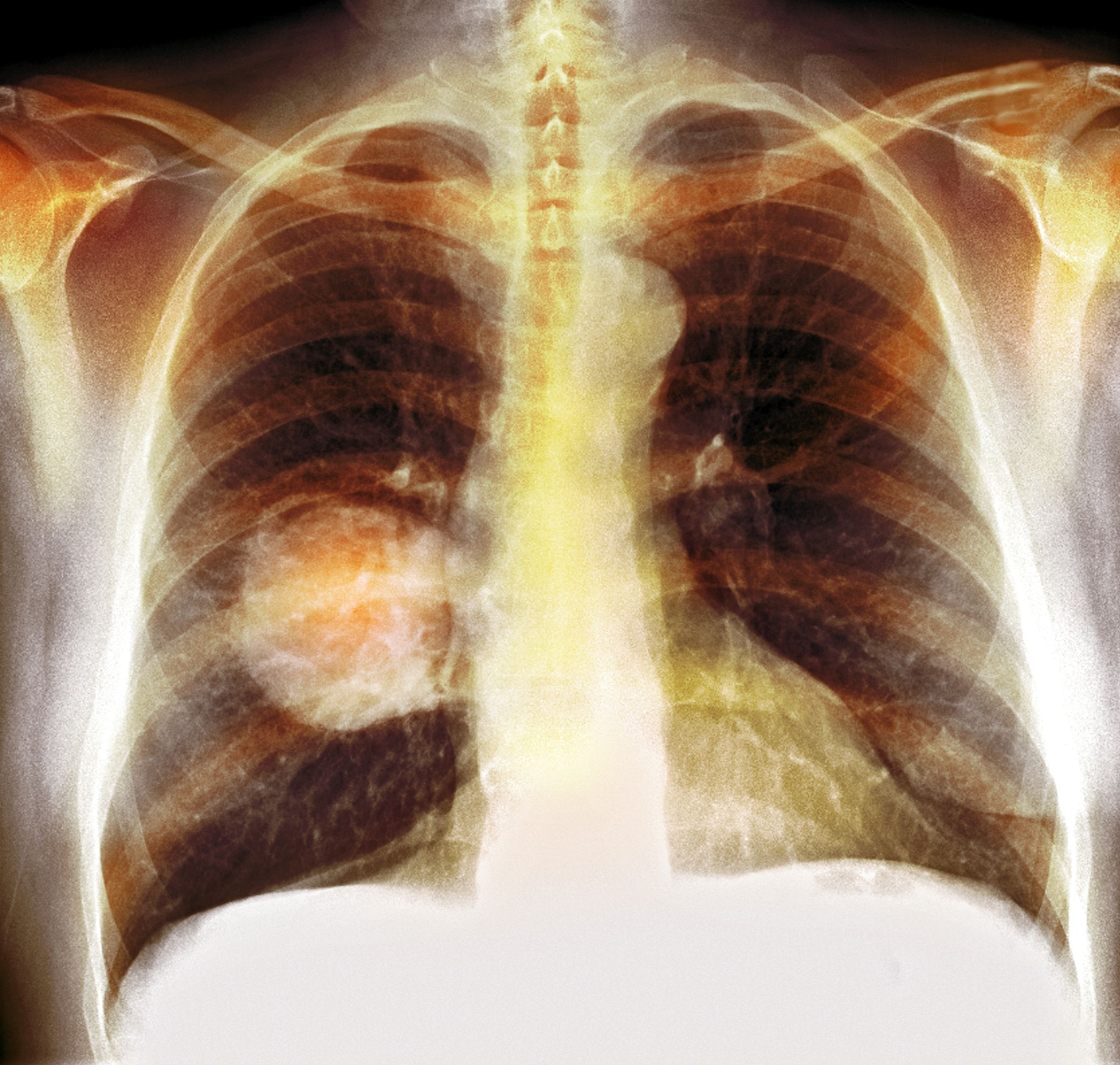 Can hpv cause lung cancer, CANCERUL PULMONAR