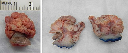squamous papilloma gross helminth science definition