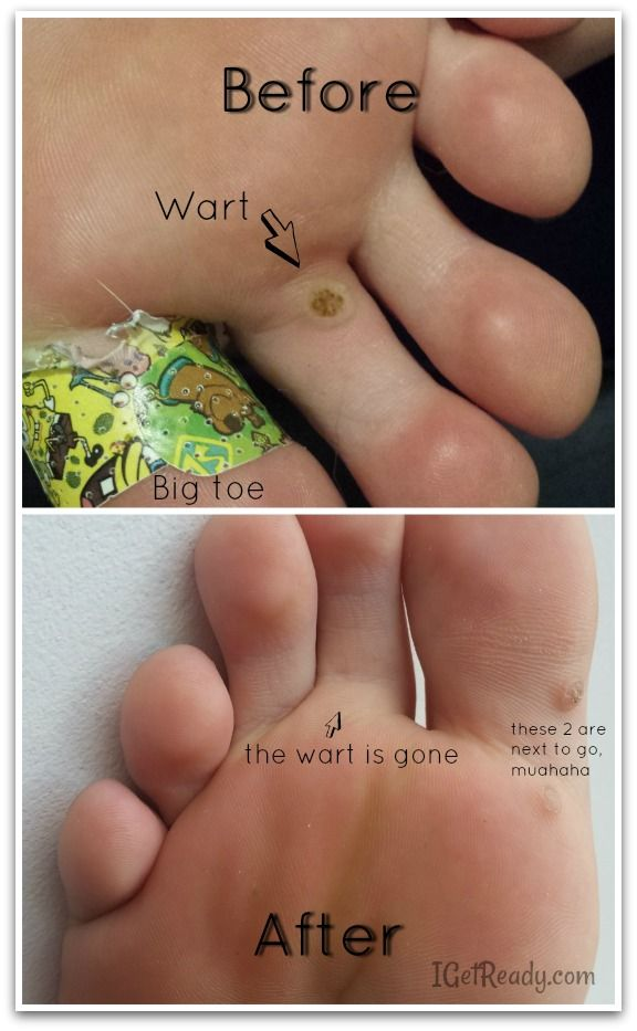 Remove wart on foot with duct tape, to cast aside - PDF Free Download