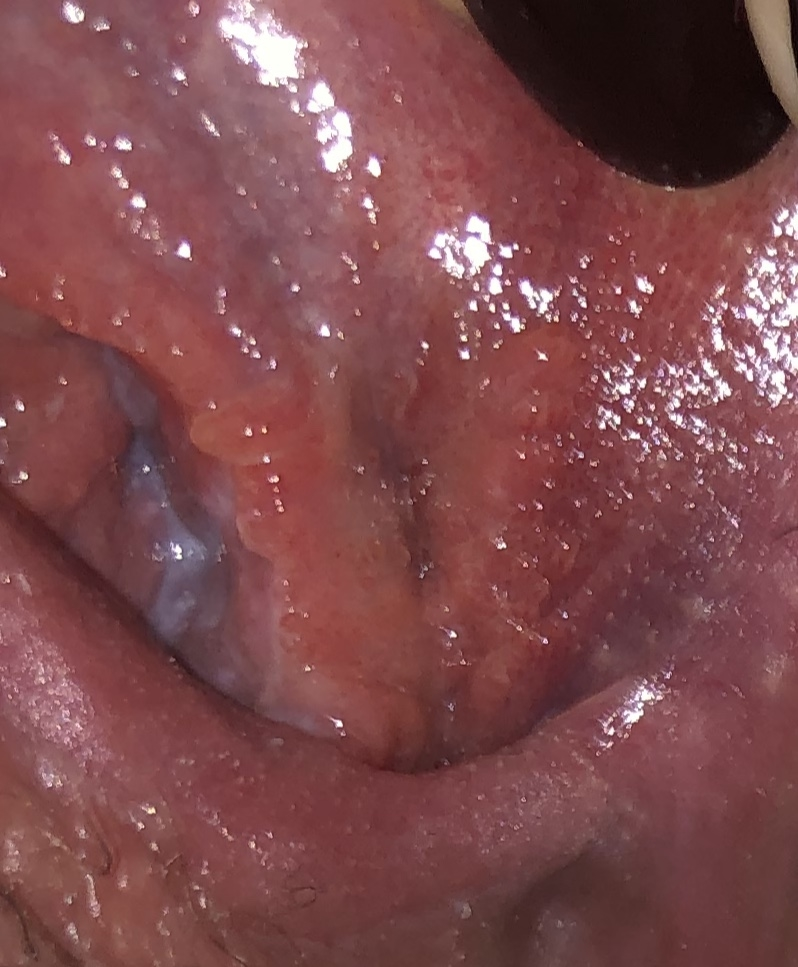 Hpv virus and cold sores. 22_herpesvirusuri
