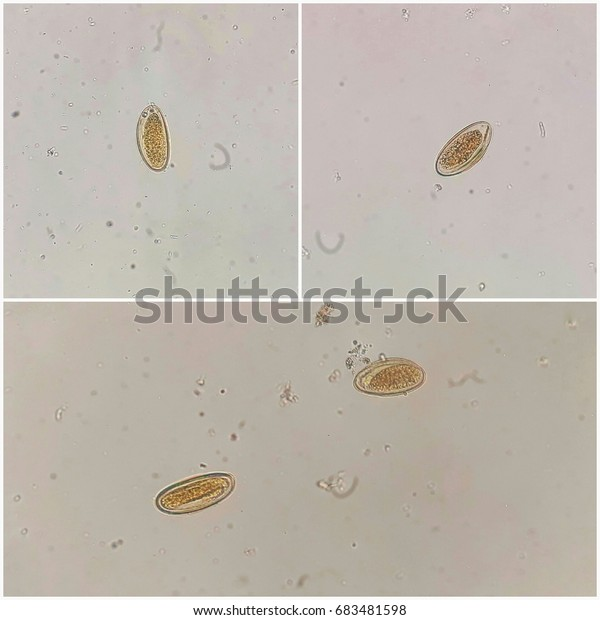 Enterobius vermicularis egg in stool