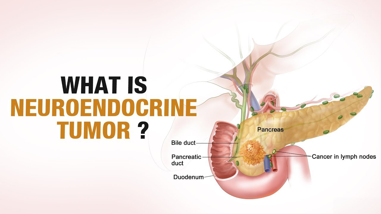 neuroendocrine cancer doctors