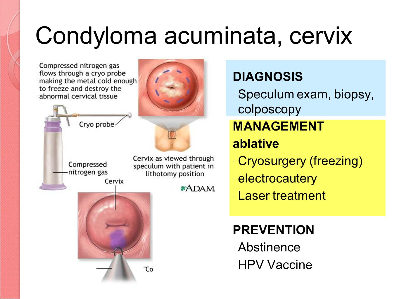 condyloma acuminatum in pregnancy)