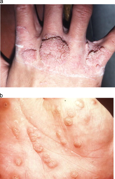 Human papillomavirus warts on feet