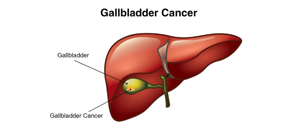 aggressive cancer of the gallbladder)