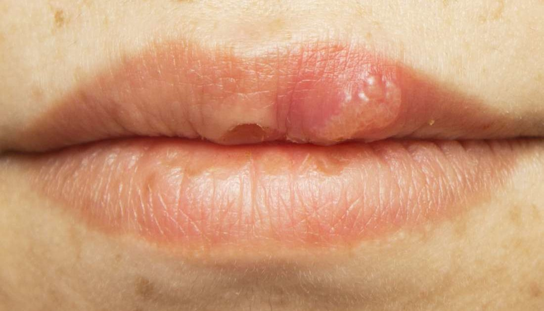 Papilloma roof of mouth