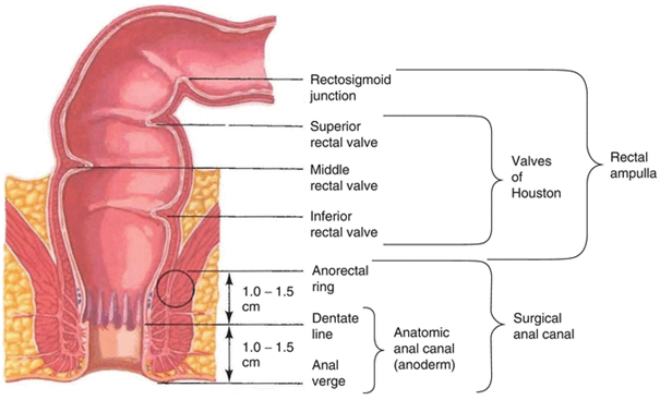 cancer of rectosigmoid junction viermi tâmplă la oameni
