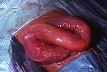 Helminth infection signs