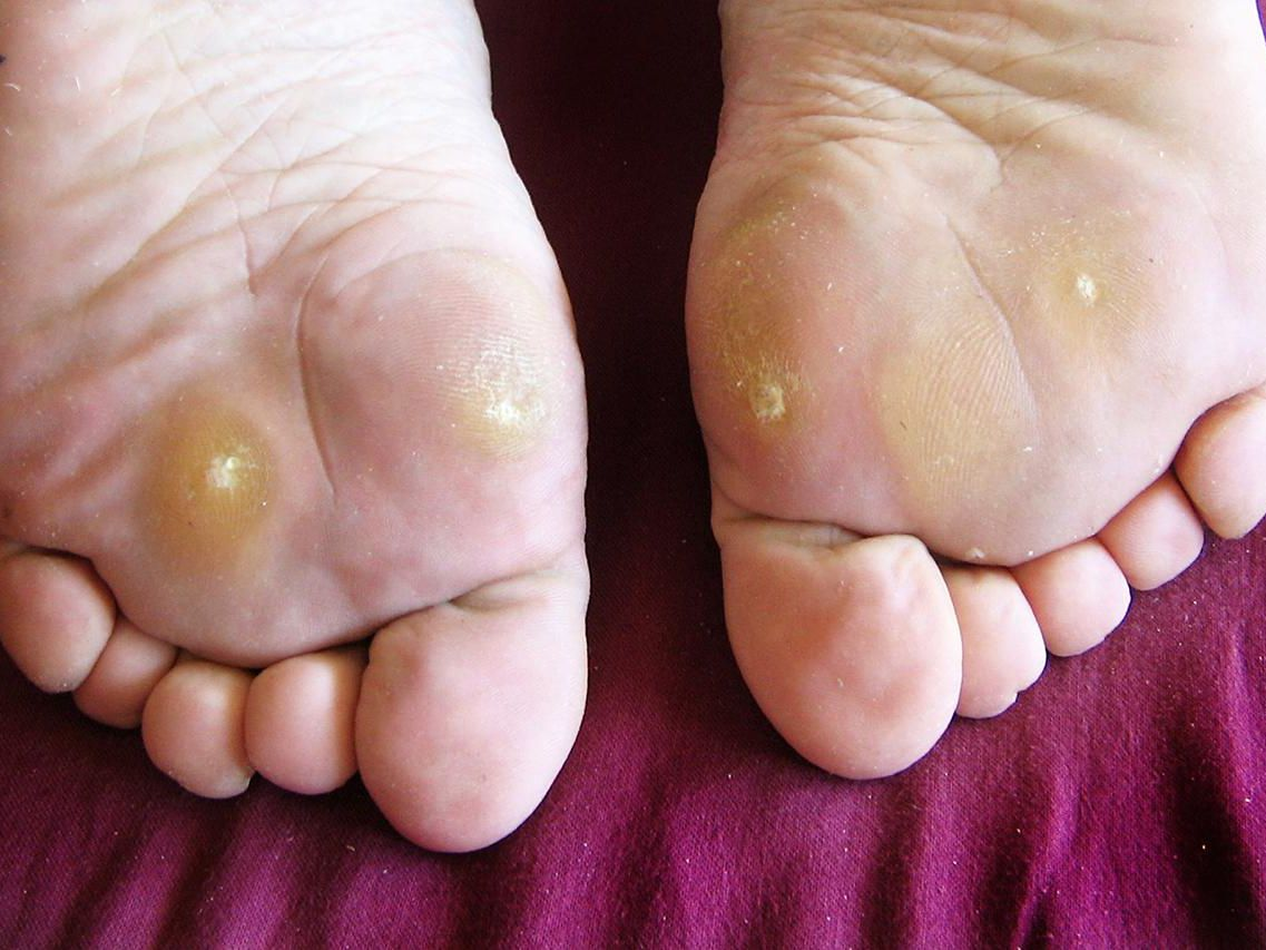warts with foot